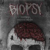 Biopsy