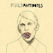Antidotes [Limited Edition]