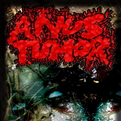 anus tumor