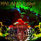 malaria labs