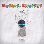 Ugly God: Bumps & Bruises (Deluxe)