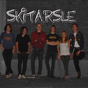 skitarsle