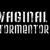 vaginal tormentor