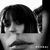 Normal - Single