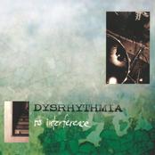 Dysrhythmia: No Interference