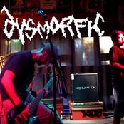 dysmorfic