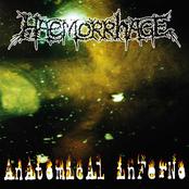 Haemorrhage: Anatomical Inferno