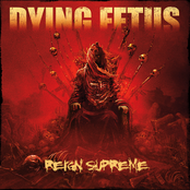 Dying Fetus: Reign Supreme