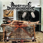 Prostitute Disfigurement: From Crotch To Crown