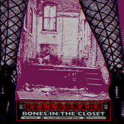 Bones In The Closet (single)