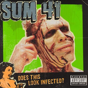Does This Look Infected Ep (+ Bonus DVD)