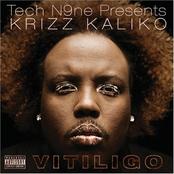 Krizz Kaliko: Vitiligo
