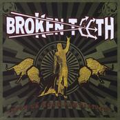 Broken Teeth: Viva La Rock, Fantastico!