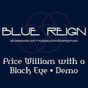 Prince William With a Black Eye • Demo