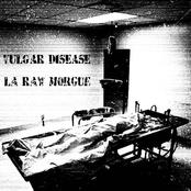 vulgar disease