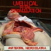 umbilical fetal estrangulation