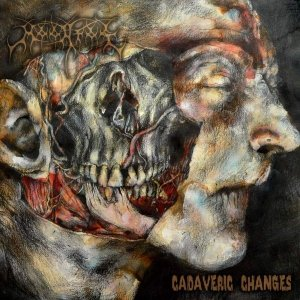 Cadaveric Changes