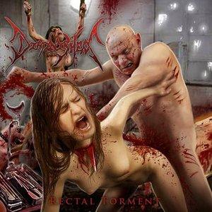 Rectal Torment