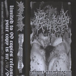 Ecthyma Gangrenosum