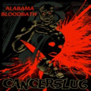 Alabama Bloodbath