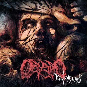 Incisions