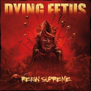 Reign Supreme (Deluxe Version)