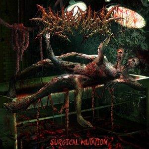 Surgical Mutation