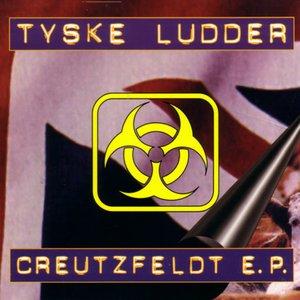 Creutzfeldt E.P.