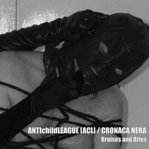 Avatar für ANTIchildLEAGUE / Cronaca Nera